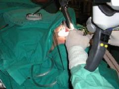 Province of Cuba Introduces CO2 Laser Surgery