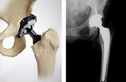 Cuba Implants Over 6000 Prosthesis of RALCA Hip