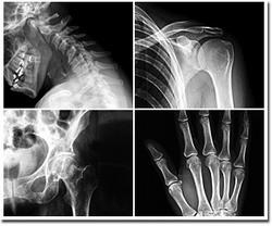 Cuba organizara Congreso Internacional de Ortopedia y Traumatologia
