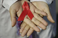 AIDS prevalence index in Cuba is considerably low