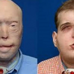 Cuban-American doctor made in New York complex face transplant